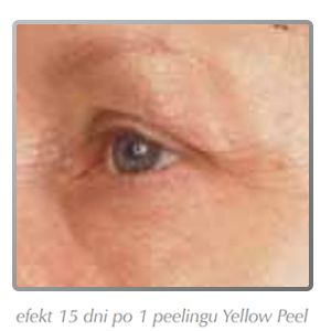 yellowpeel2po
